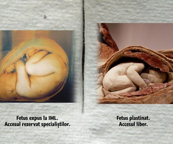fetusi-expusi-antipa-iml